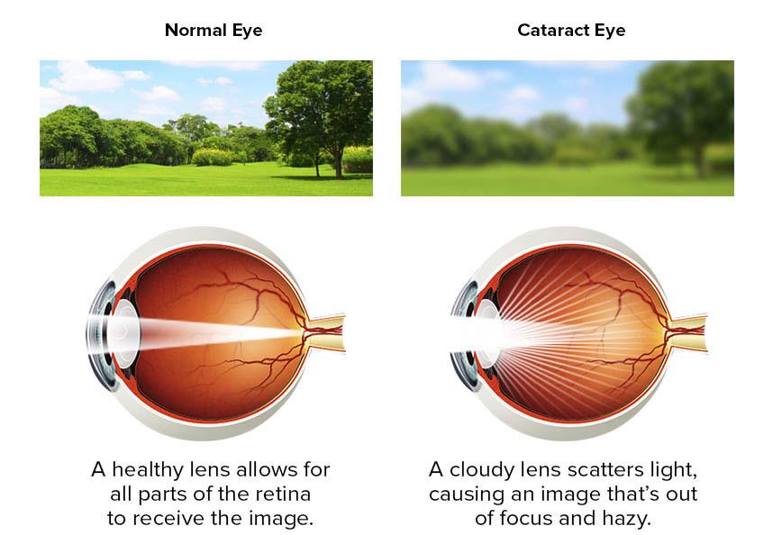 cf71aea5cde Cataract Treatment Surgery (IOL)